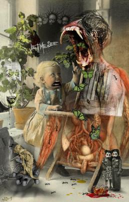 Joseph D. Myers, classic collages, R.I.P., bizzare, grotesque, depression, tooth, guts, child, artscum